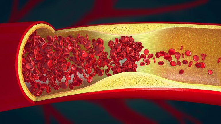 Thromboses et chutes de plaquettes sanguines: la piste d'une réponse immunitaire pour les rares cas de jeunes patients vaccinés avec AstraZeneca