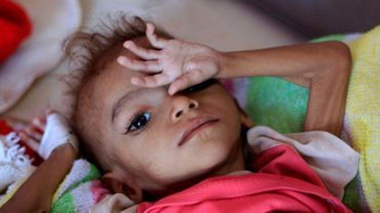 Des milliers d'enfants morts de malnutrition au Yemen