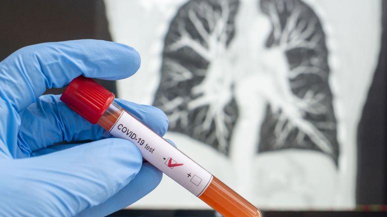 Communes, âges, décès& Où en est l'épidémie de coronavirus en Belgique ce mardi?