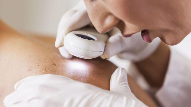 Prévention et cancer de la peau: quand faut-il s'inquiéter?